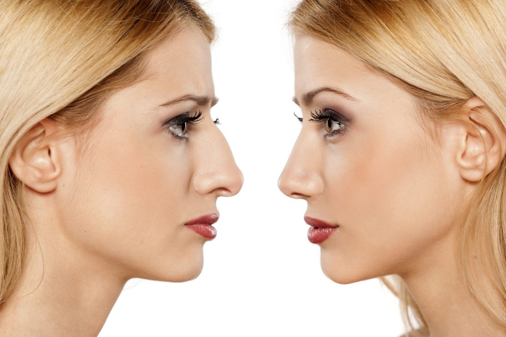 Improve Your Nose's Appearance – Non Surgical Solutions to Consider